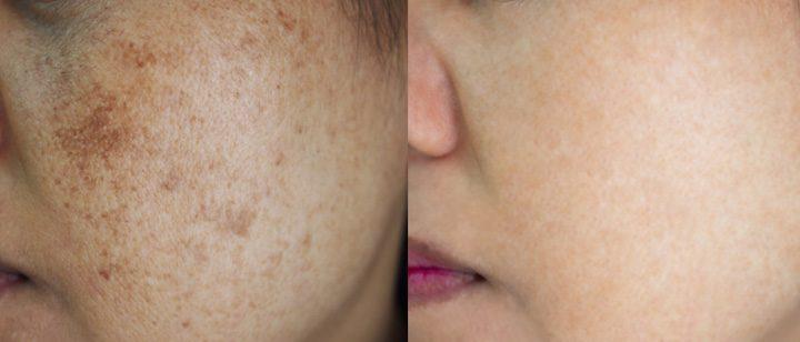 3 cách trị nám da và tàn nhang an toàn bằng trà